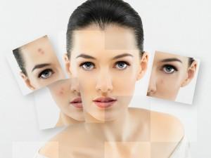tratamientos faciales madrid antimanchas