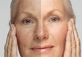 aumentar-elasticidad-piel-2