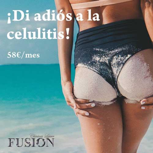 img_clf_celulitis_fb_03_opt